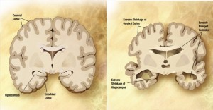 cerebro con alzheimer cuidado ybienestar